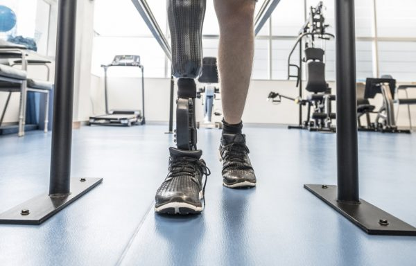 Leg Prosthetics